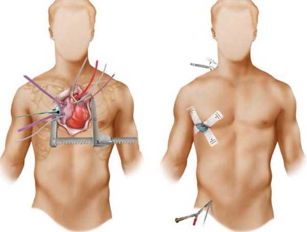 Minimally invasive valve surgery improves heart care: UNM Health ...